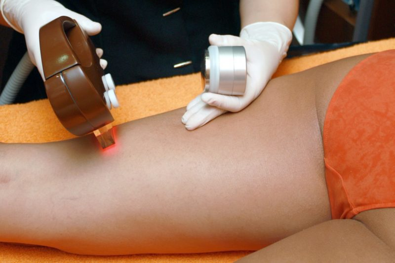 How to get laser hair removal covered by insurance